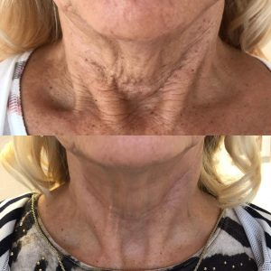 fibroblast treatment before and after on neck