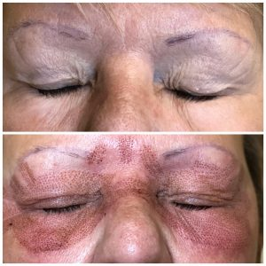 skin tightening eyes