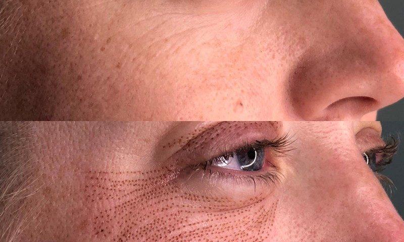 fibroblast eyelids